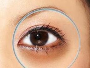 怎样轻松有效去除黑眼圈?
